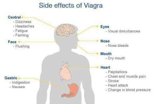 sildenafil citrate viagra side effects